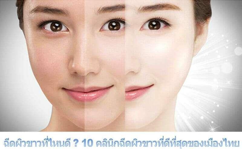 10 คลินิกฉีดผิวขาวที่ดีที่สุดของเมืองไทย