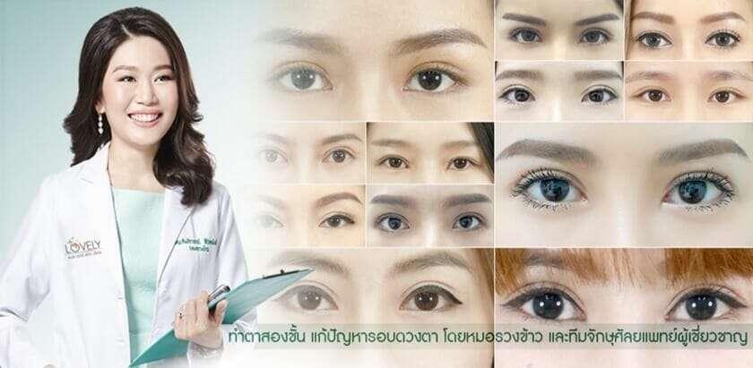 10 อันดับคลินิกศัลยกรรมตาสองชั้น เปลี่ยนตาอาหมวยให้กลมโต คืนความมั่นใจให้เต็มเปี่ยม ใส่ใจทุกรายละเอียด 2