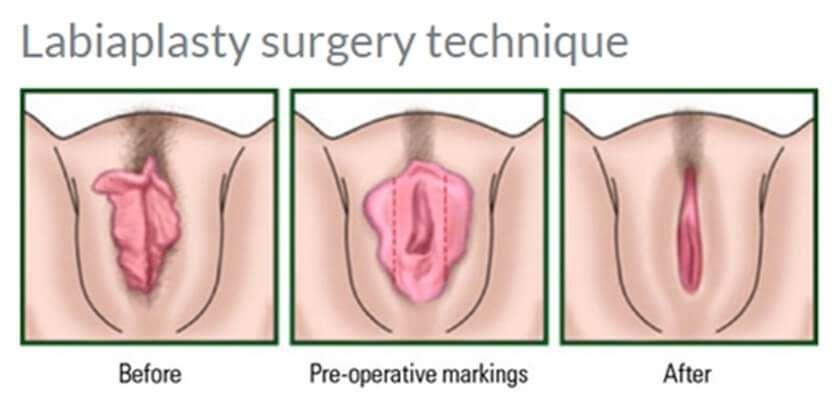การผ่าตัดกระชับช่องคลอด