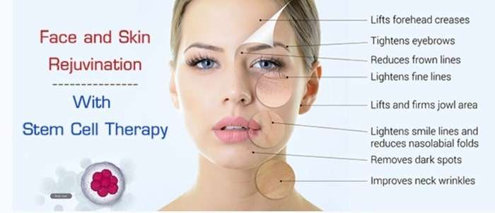 What are the negative effects of stem cell therapy