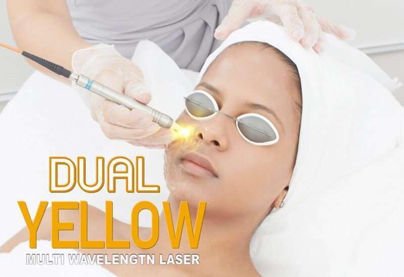 10 ร้านคลินิกเลเซอร์ Dual Yellow Laser ลบริ้วรอยเพิ่มความกระจ่างใสได้ดีที่สุด [wpsm_custom_meta type=date field=year] 1