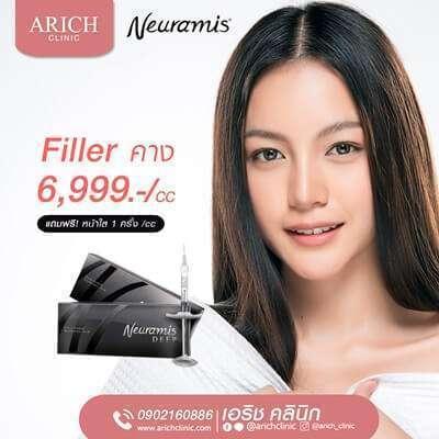 สวยสั่งได้ที่ 10 คลินิก Neuramis filler ฟิลเลอร์ตัวดังสัญชาติเกาหลี 8