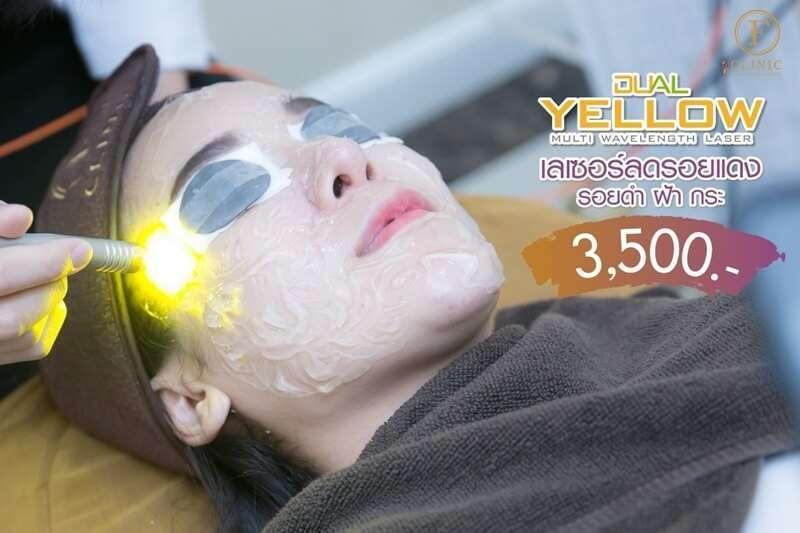 10 ร้านคลินิกเลเซอร์ Dual Yellow Laser ลบริ้วรอยเพิ่มความกระจ่างใสได้ดีที่สุด [wpsm_custom_meta type=date field=year] 7