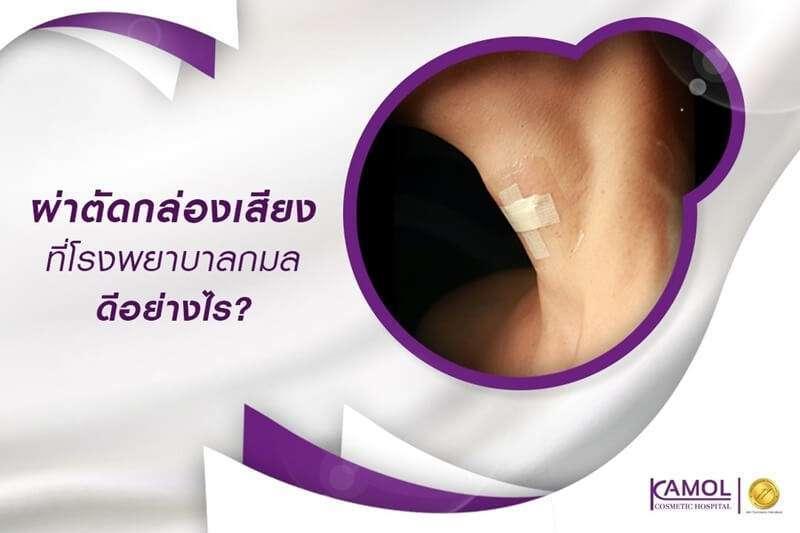 10 สถานพยาบาลผ่าตัดกล่องเสียง รักษาดี คุณภาพครบครัน มั่นใจผลลัพธ์ได้เต็มที่ 5