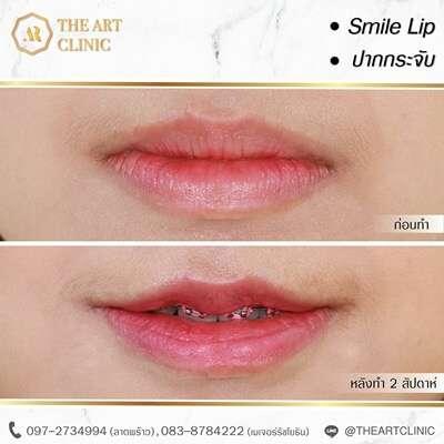 10 คลินิกผ่าตัดยกมุมปาก สร้างรอยยิ้มสวยหวาน สดใส ดูอ่อนเยาว์ในราคาคุ้มเกินคุ้ม 8