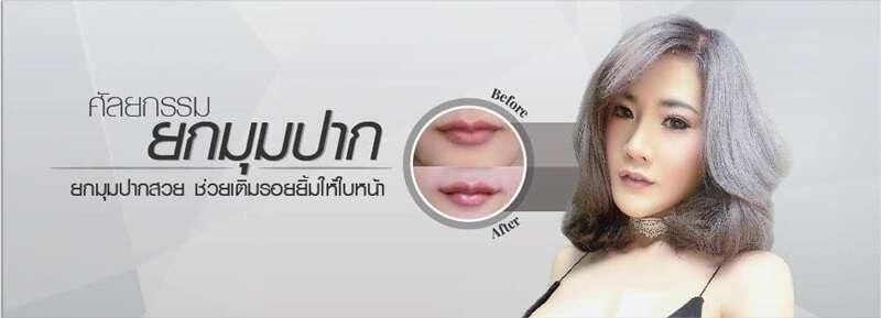 10 คลินิกผ่าตัดยกมุมปาก สร้างรอยยิ้มสวยหวาน สดใส ดูอ่อนเยาว์ในราคาคุ้มเกินคุ้ม 4