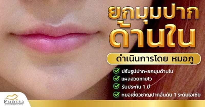 10 คลินิกผ่าตัดยกมุมปาก สร้างรอยยิ้มสวยหวาน สดใส ดูอ่อนเยาว์ในราคาคุ้มเกินคุ้ม 7