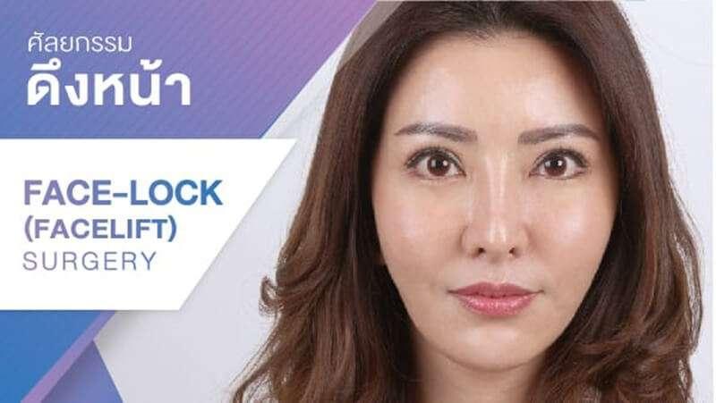 10 'คลินิกศัลยกรรมดึงหน้า Face Lift' เปลี่ยนหน้าหย่อนคล้อยให้กระชับ สวยย้อนวัย ดูเด็กลงกว่า 10 ปี 6