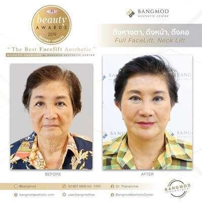 10 'คลินิกศัลยกรรมดึงหน้า Face Lift' เปลี่ยนหน้าหย่อนคล้อยให้กระชับ สวยย้อนวัย ดูเด็กลงกว่า 10 ปี 11
