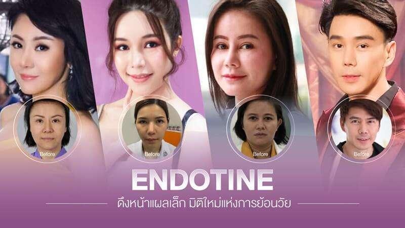 10 'คลินิกศัลยกรรมดึงหน้า Face Lift' เปลี่ยนหน้าหย่อนคล้อยให้กระชับ สวยย้อนวัย ดูเด็กลงกว่า 10 ปี 2