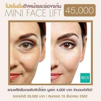 10 'คลินิกศัลยกรรมดึงหน้า Face Lift' เปลี่ยนหน้าหย่อนคล้อยให้กระชับ สวยย้อนวัย ดูเด็กลงกว่า 10 ปี 10