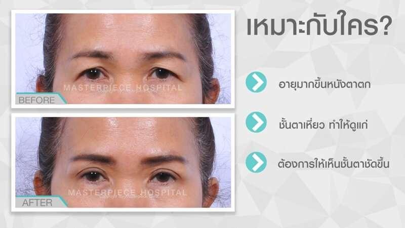 10 คลินิกผ่าตัดหนังตา มาตรฐานเลิศ แก้ไขทุกปัญหารอบดวงตา โดยแพทย์ผู้เชี่ยวชาญ 2