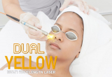 10 ร้านคลินิกเลเซอร์ Dual Yellow Laser ลบริ้วรอยเพิ่มความกระจ่างใสได้ดีที่สุด 2021